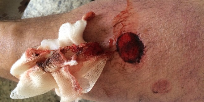 15-8-13-ferimentos-fotógrafo-denilton-dias-IMG_2770-660x330